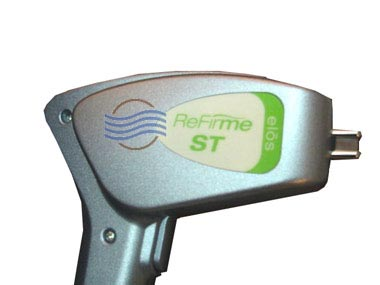 syneron-refirme-st
