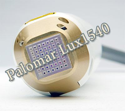 palomar lux1540 stretch mark treatments